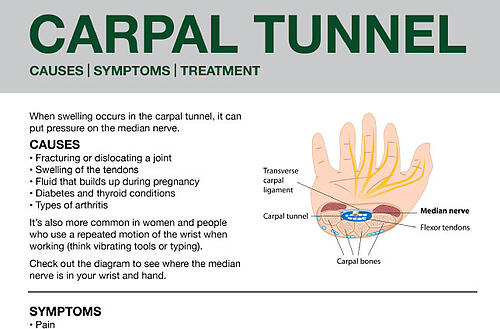 Carpal-Tunnel-Downloadable