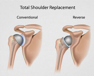 Reverse_Shoulder_Replacement-1